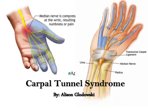 carpel-tunnel