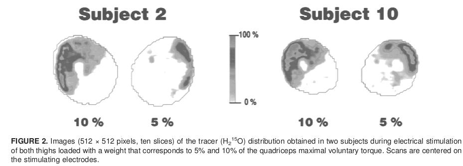 חתך רוחב של הארבע ראשי שמראה זרימת דם בכיווץ חשמלי.Vanderthommen et al, 2000