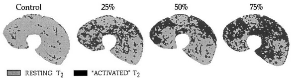 חתך של הארבע ראשי. בשחור-האזורים שהתכווצו בעצמות שונות של כיווץ מתוך היכולת המירבית. Adams, 1993