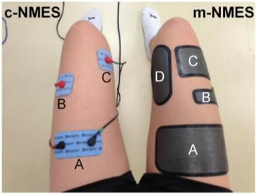 שיפור טכנולוגי (מימן) לNMES הקלאסי (משמאל) Maffiuletti et al, 2014